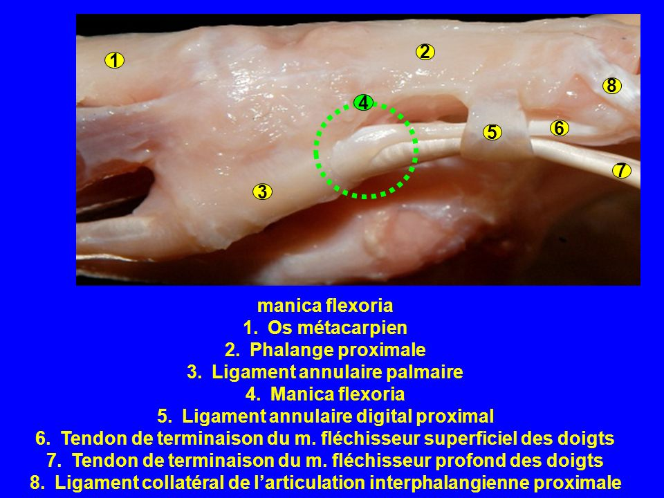 Ligament annulaire palmaire Manica flexoria