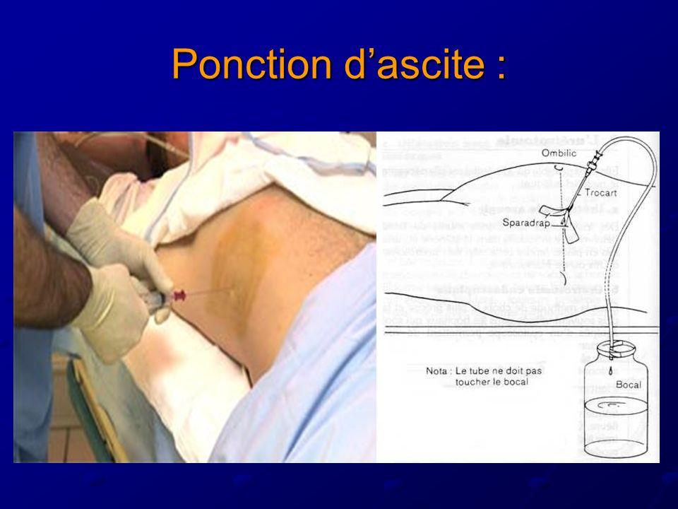 Ponction d'ascite :
