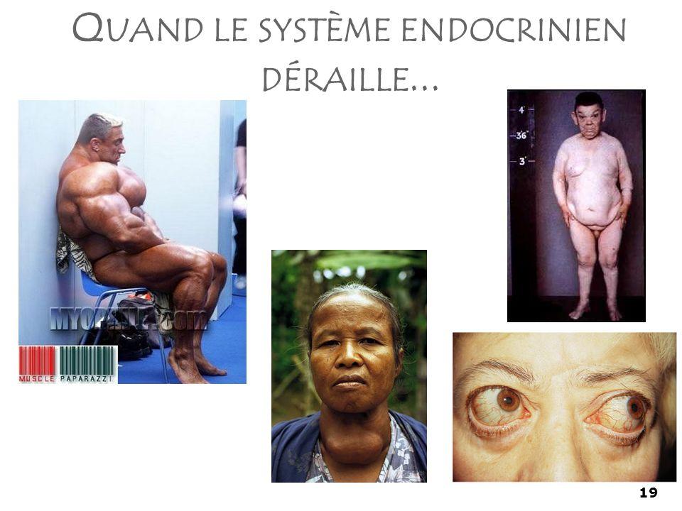 Quand le système endocrinien déraille...