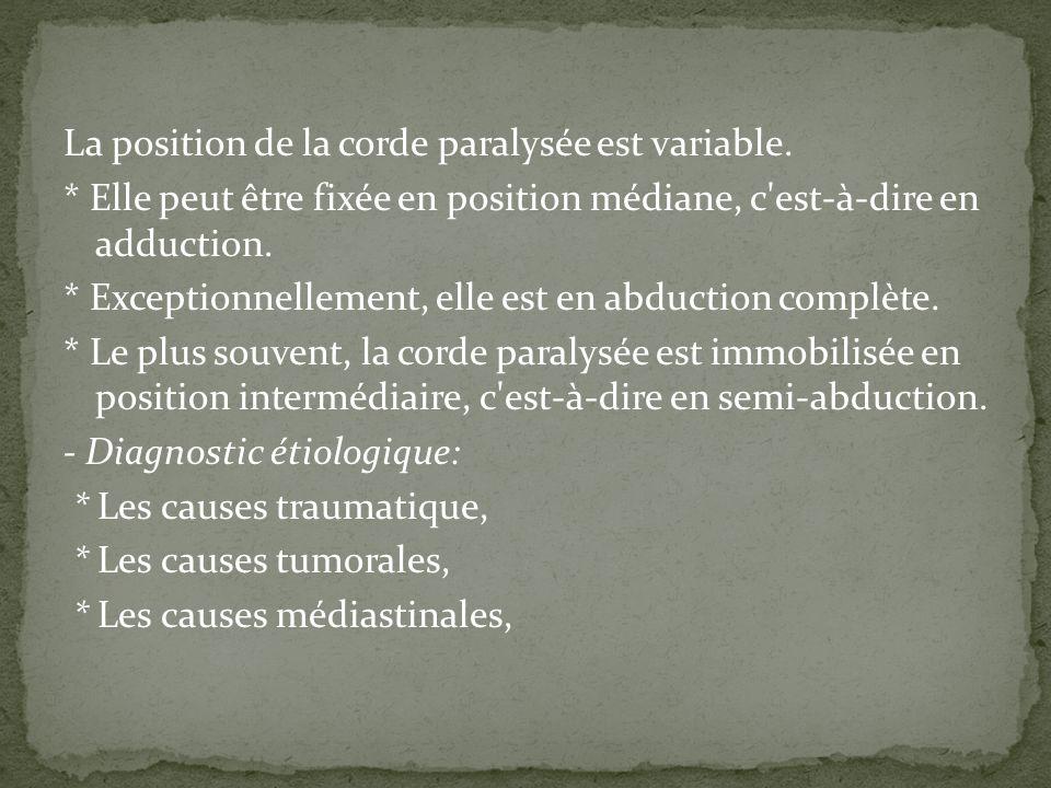 La position de la corde paralysée est variable