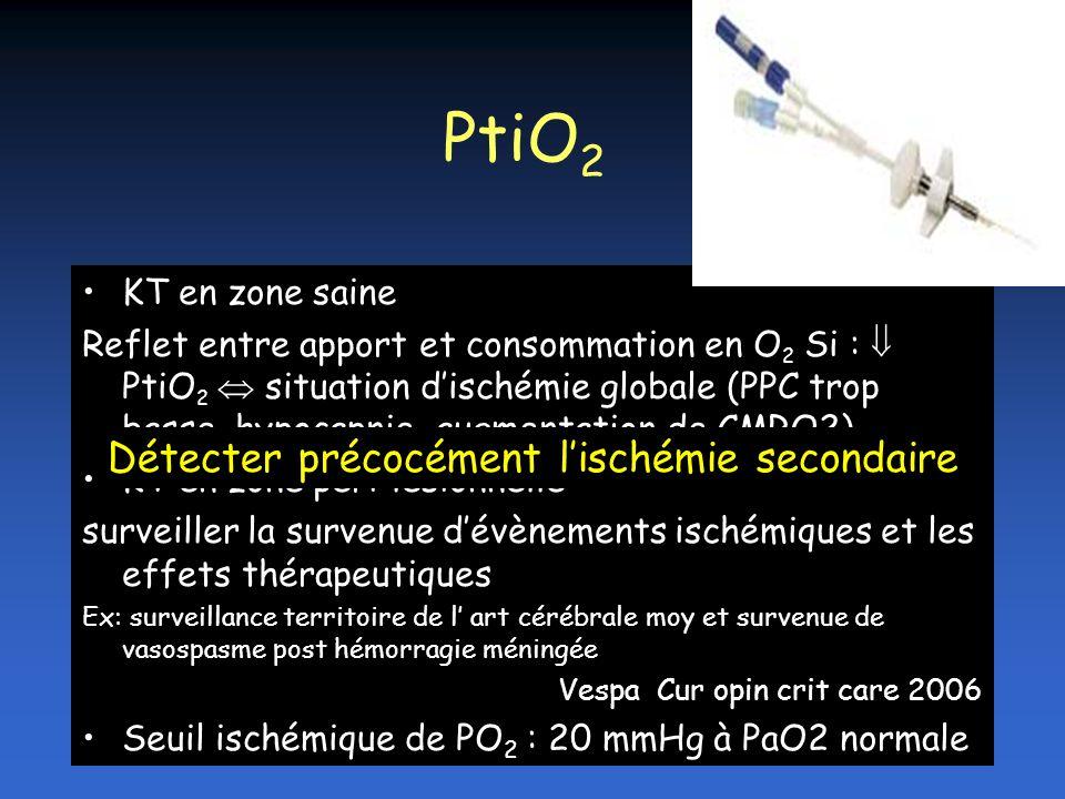 PtiO2 Détecter précocément l'ischémie secondaire KT en zone saine