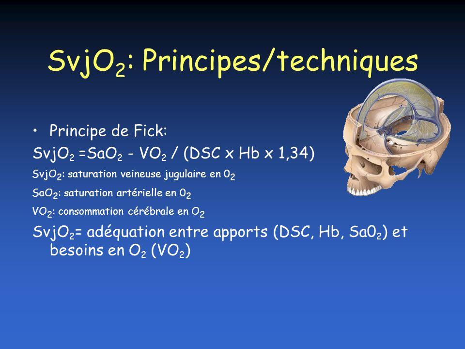 SvjO2: Principes/techniques