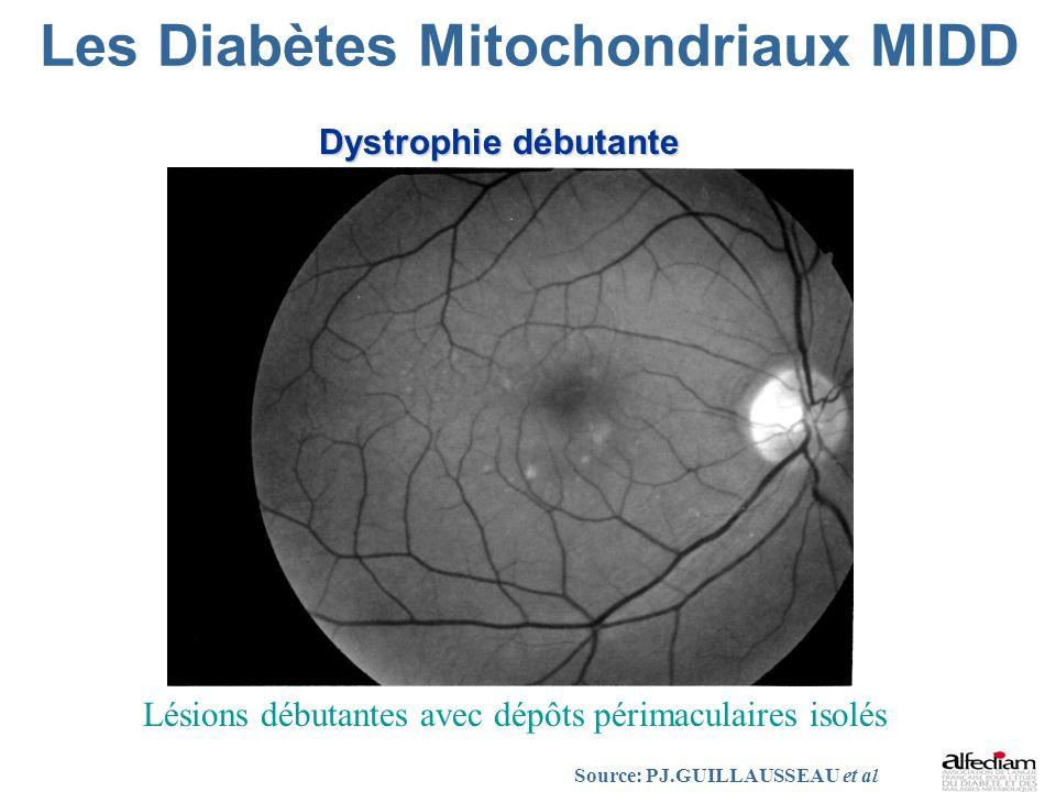 Les Diabètes Mitochondriaux MIDD