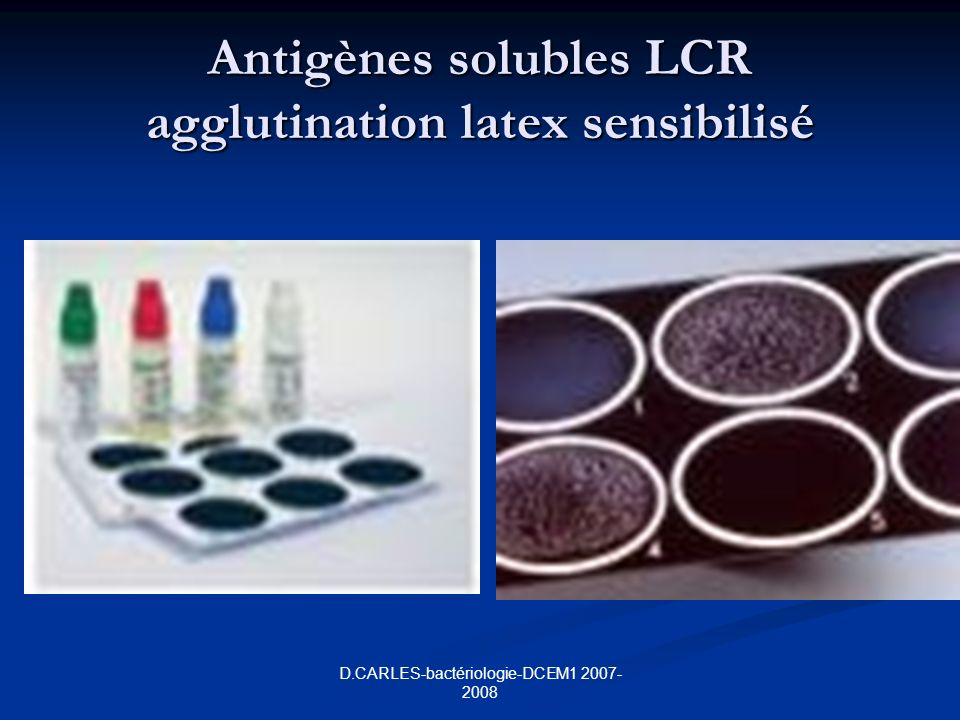 Antigènes solubles LCR agglutination latex sensibilisé