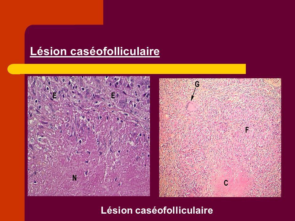 Lésion caséofolliculaire