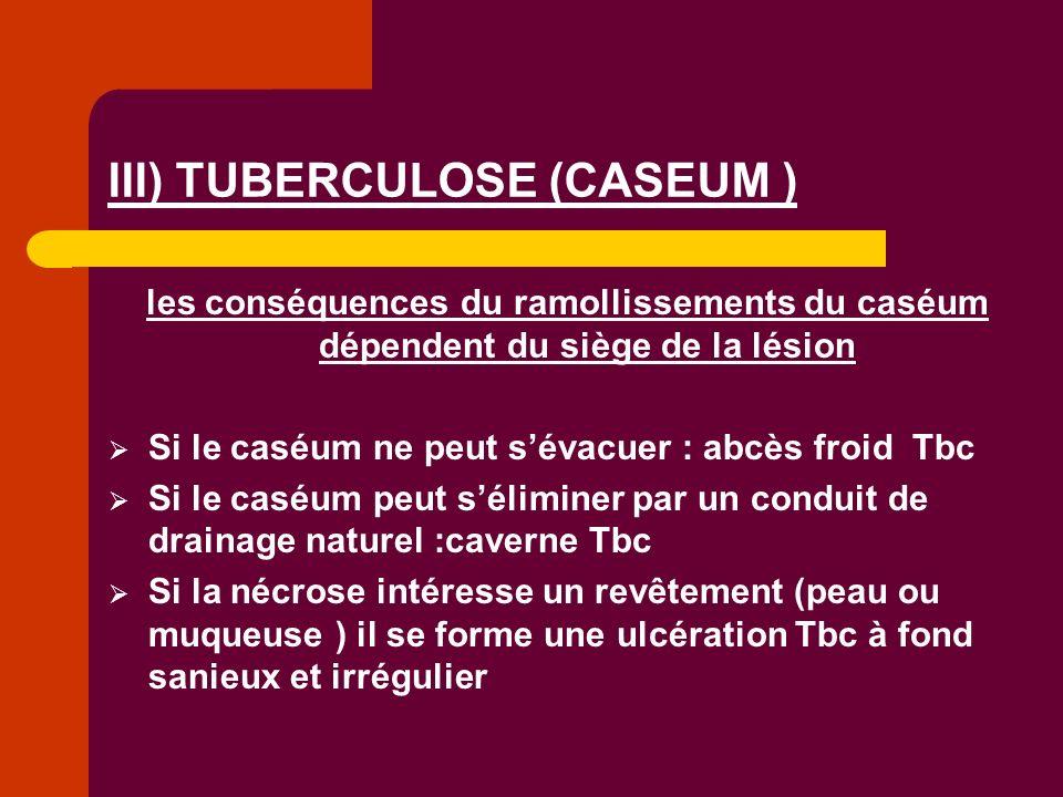 III) TUBERCULOSE (CASEUM )