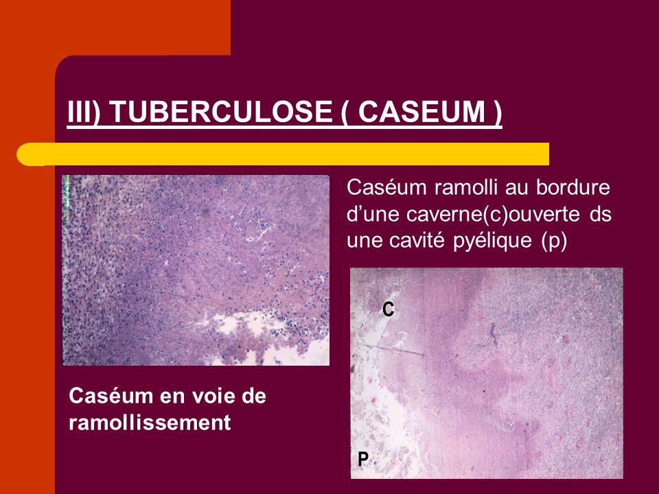 III) TUBERCULOSE ( CASEUM )
