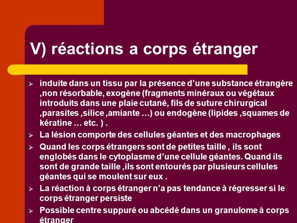 V) réactions a corps étranger