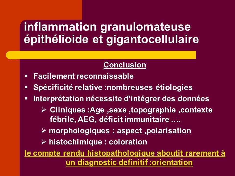 inflammation granulomateuse épithélioide et gigantocellulaire