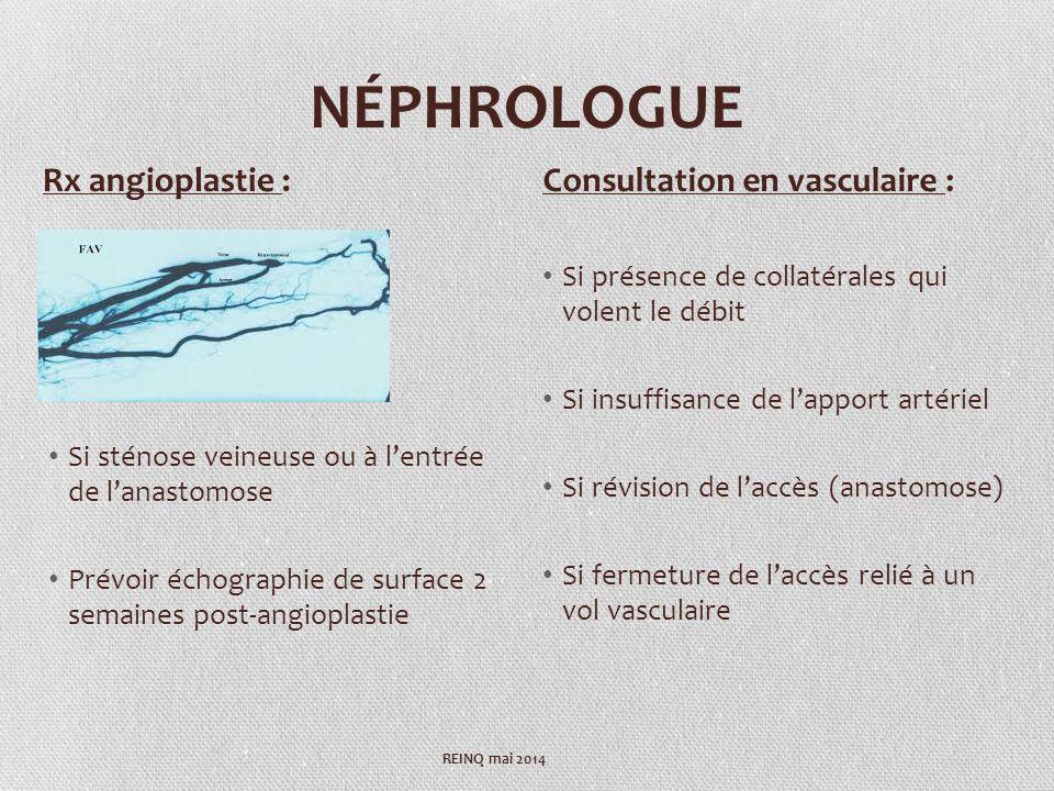 NÉPHROLOGUE Rx angioplastie : Consultation en vasculaire :