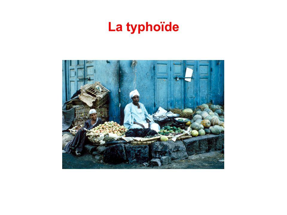 La typhoïde