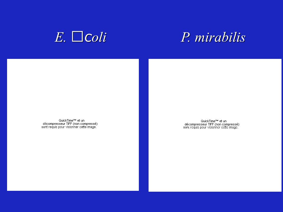 E. coli P. mirabilis