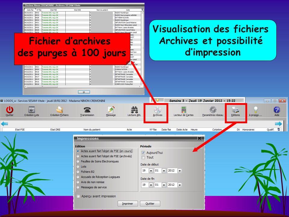 Visualisation des fichiers Archives et possibilité