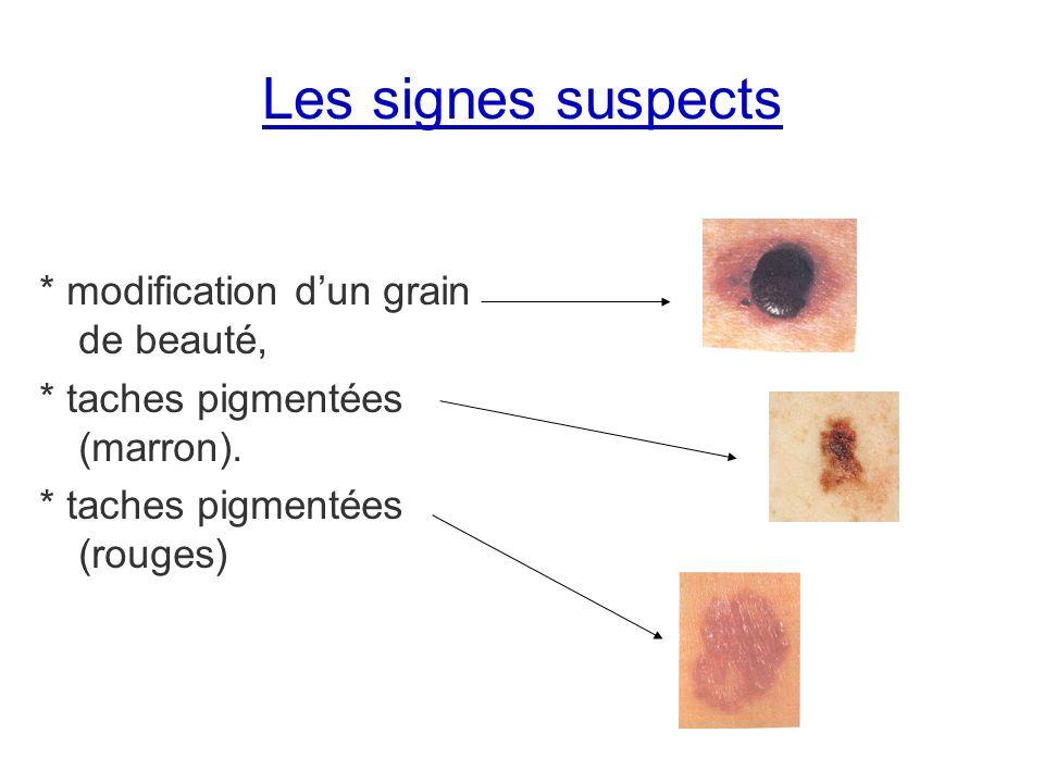 Les signes suspects * modification d'un grain de beauté,