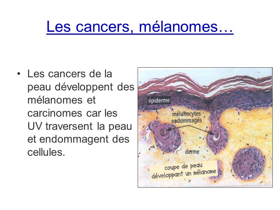 Les cancers, mélanomes…