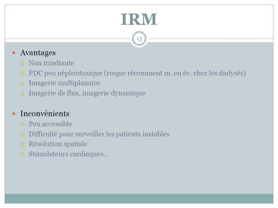 IRM Avantages Inconvénients Non irradiante
