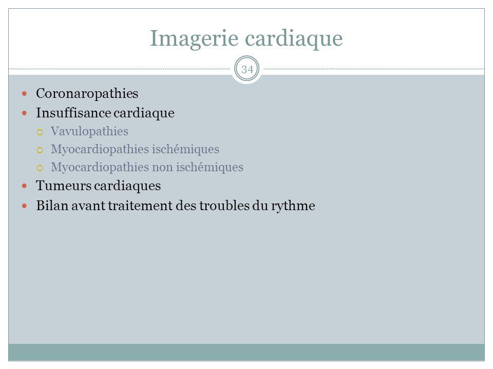 Imagerie cardiaque Coronaropathies Insuffisance cardiaque