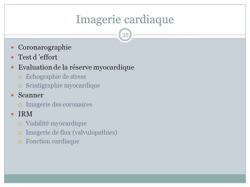 Imagerie cardiaque Coronarographie Test d 'effort