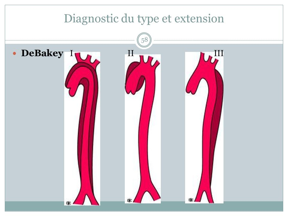 Diagnostic du type et extension