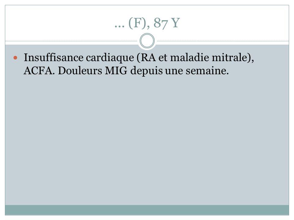 ... (F), 87 Y Insuffisance cardiaque (RA et maladie mitrale), ACFA.