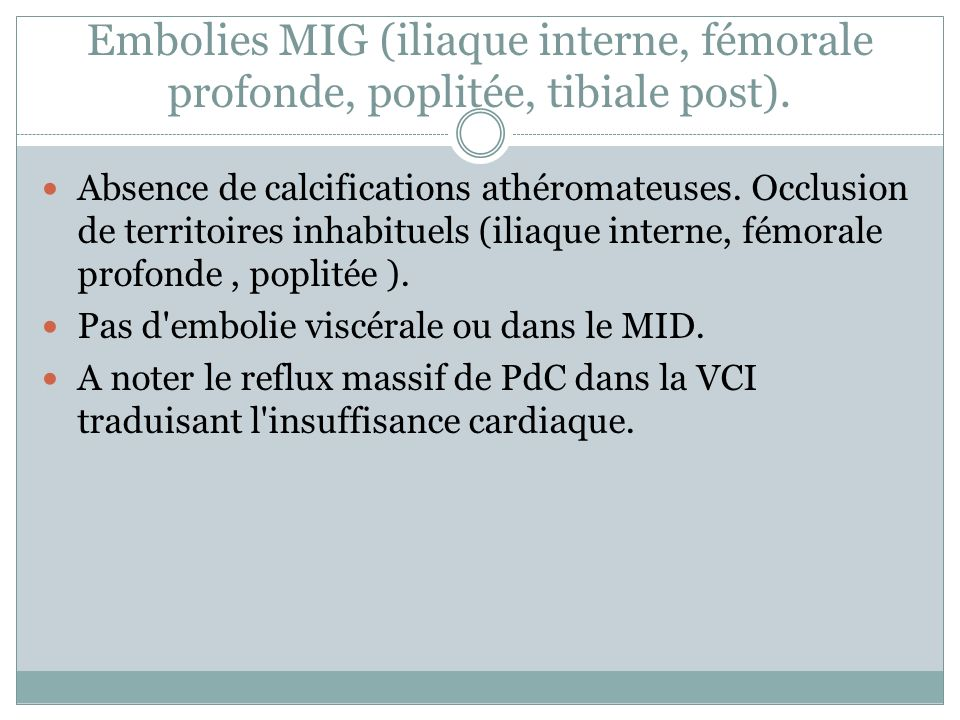Embolies MIG (iliaque interne, fémorale profonde, poplitée, tibiale post).