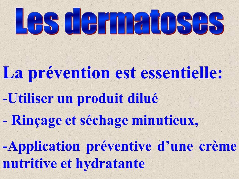 La prévention est essentielle: