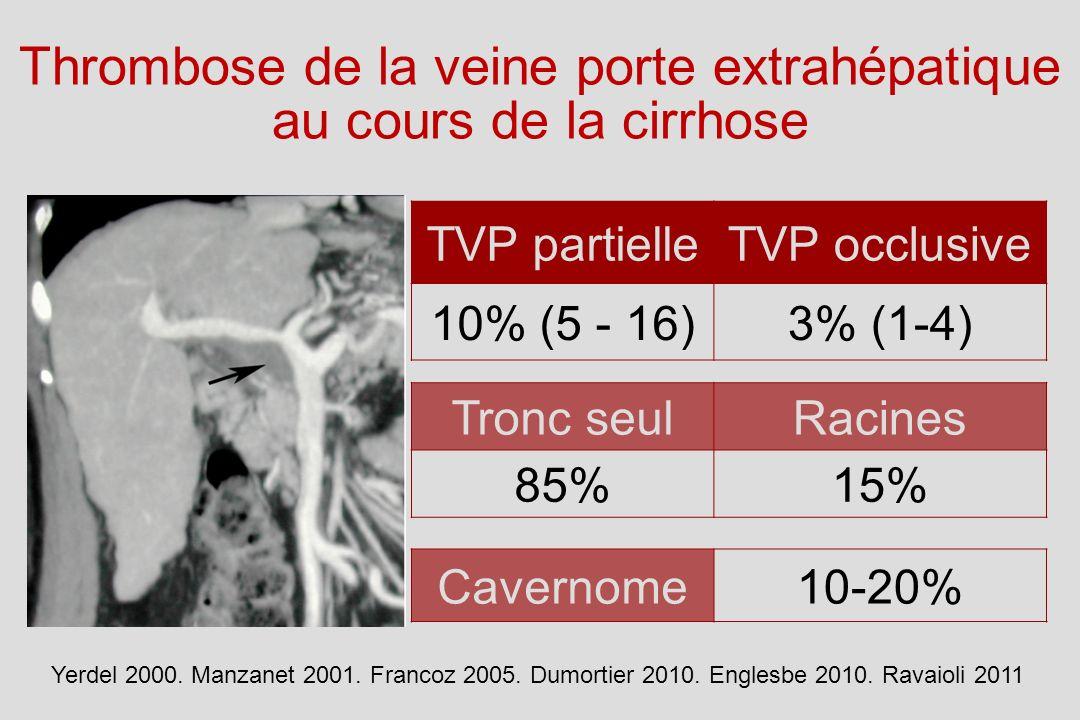 Thrombose de la veine porte extrahépatique au cours de la cirrhose
