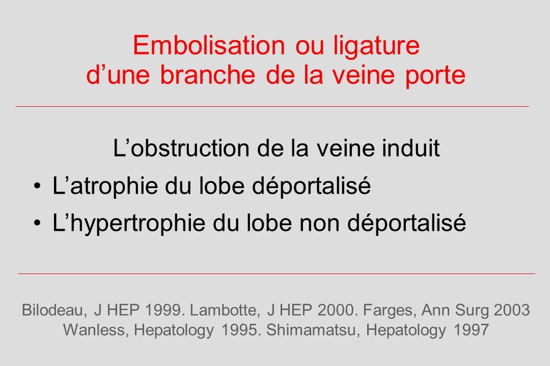 Embolisation ou ligature d'une branche de la veine porte