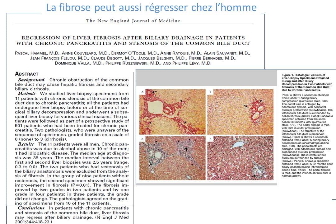 La fibrose peut aussi régresser chez l'homme