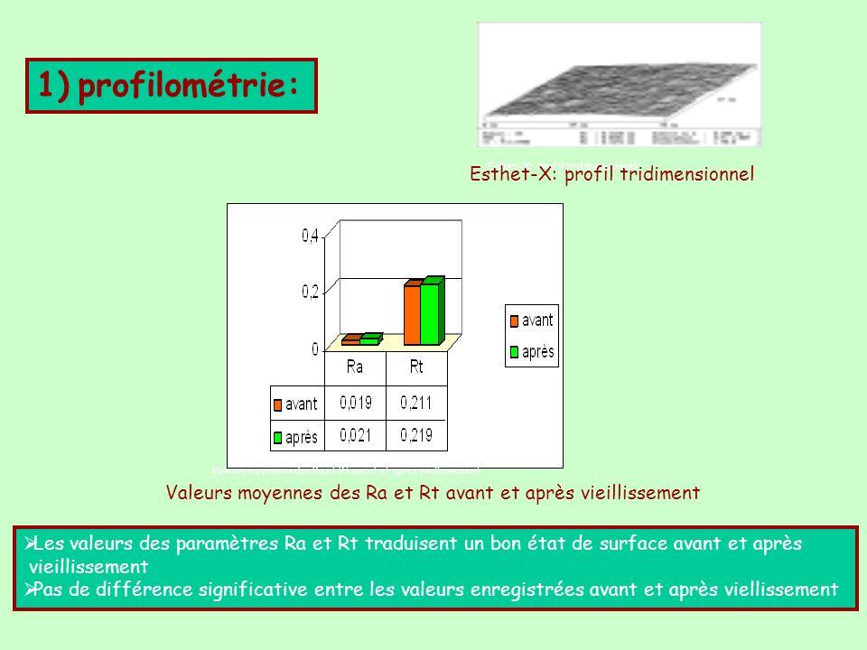 1) profilométrie: Esthet-X: profil tridimensionnel