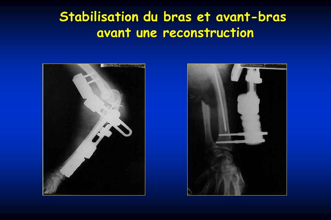 Stabilisation du bras et avant-bras avant une reconstruction