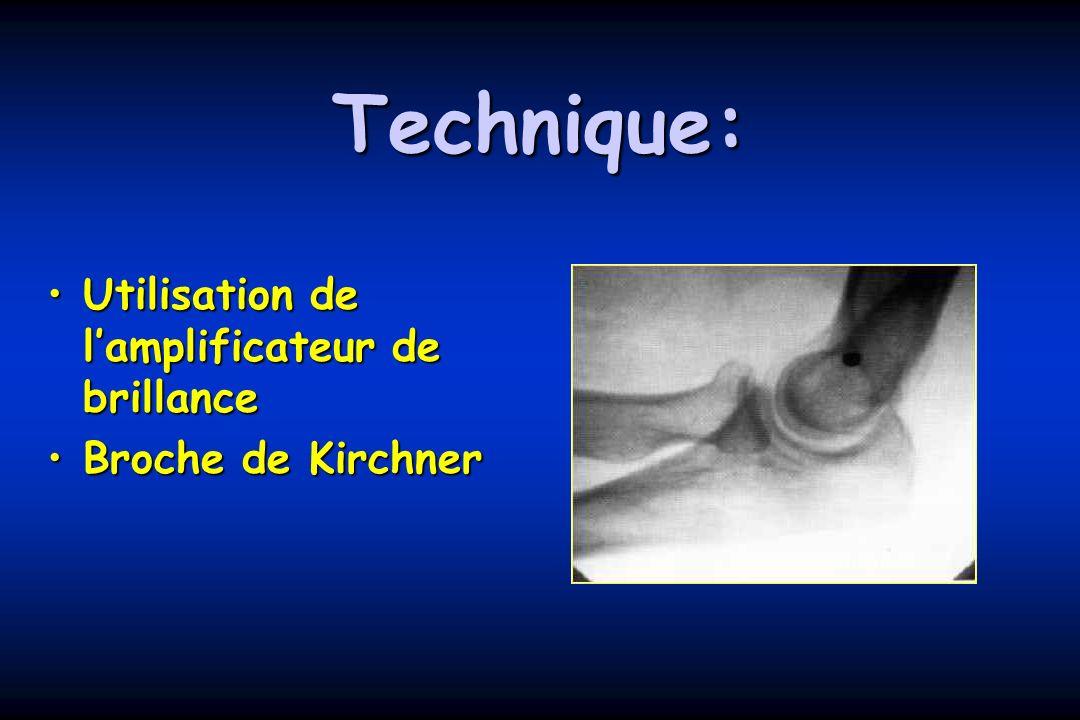 Technique: Utilisation de l'amplificateur de brillance