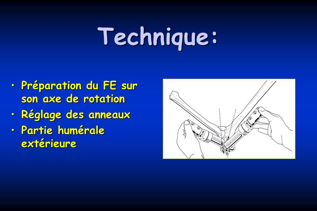 Technique: Préparation du FE sur son axe de rotation