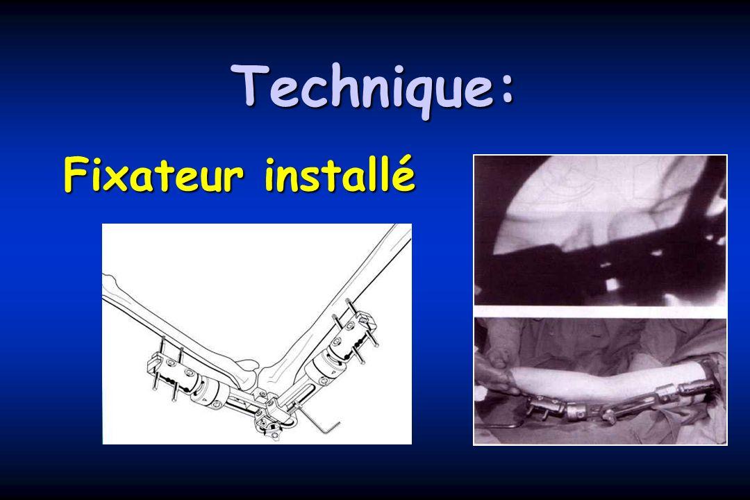 Technique: Fixateur installé
