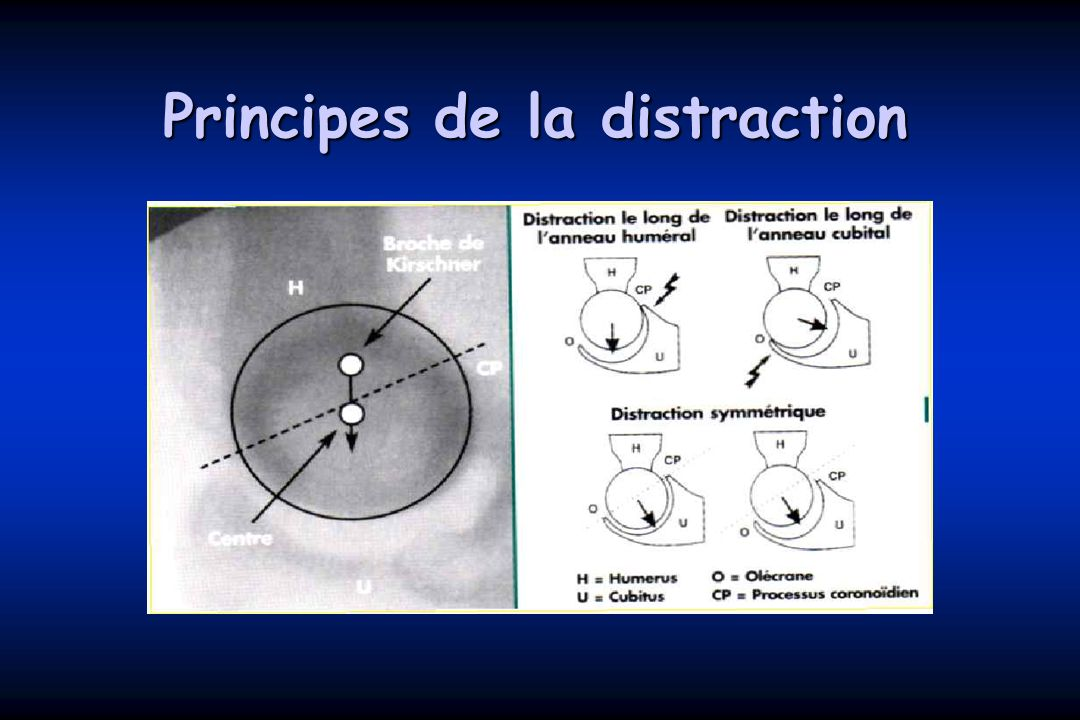 Principes de la distraction
