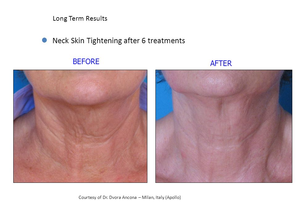 Neck Skin Tightening after 6 treatments