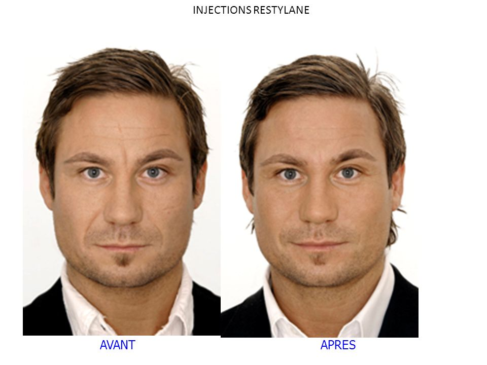 INJECTIONS RESTYLANE AVANT APRES