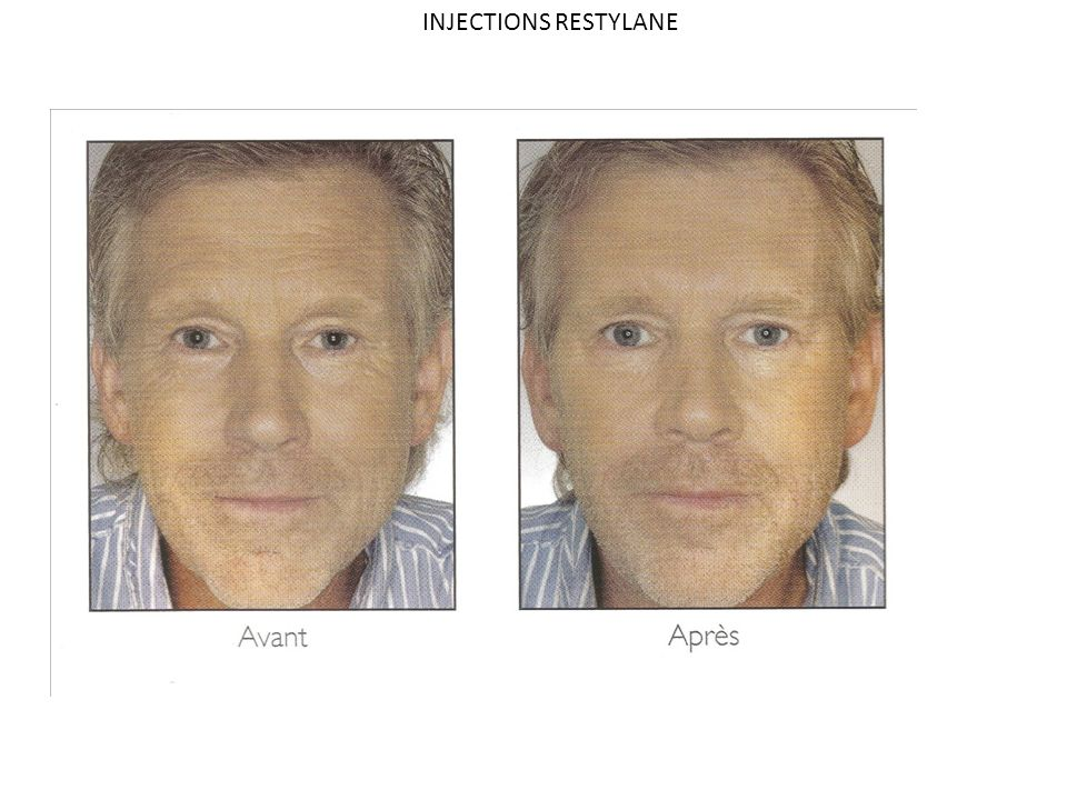 INJECTIONS RESTYLANE