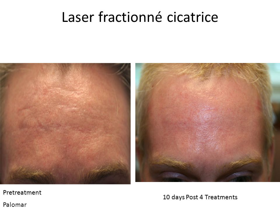 Laser fractionné cicatrice