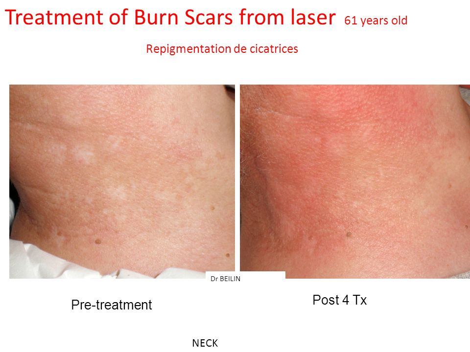 Treatment of Burn Scars from laser 61 years old