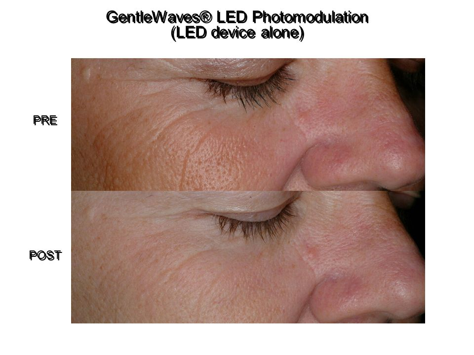 GentleWaves® LED Photomodulation