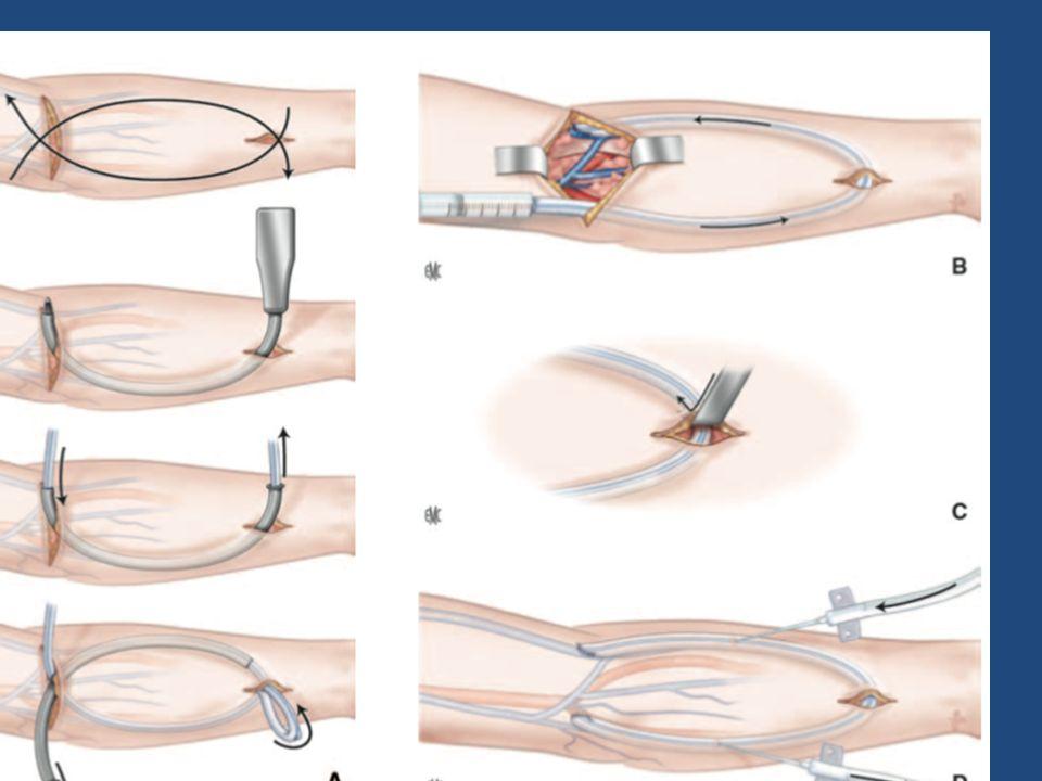 AVANT BRAS Pontage à partir de l'artère humérale: ANSE / LOOP