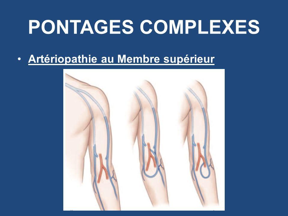 PONTAGES COMPLEXES Artériopathie au Membre supérieur