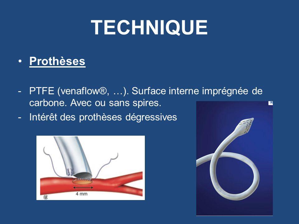 TECHNIQUE Prothèses. PTFE (venaflow®, …). Surface interne imprégnée de carbone. Avec ou sans spires.