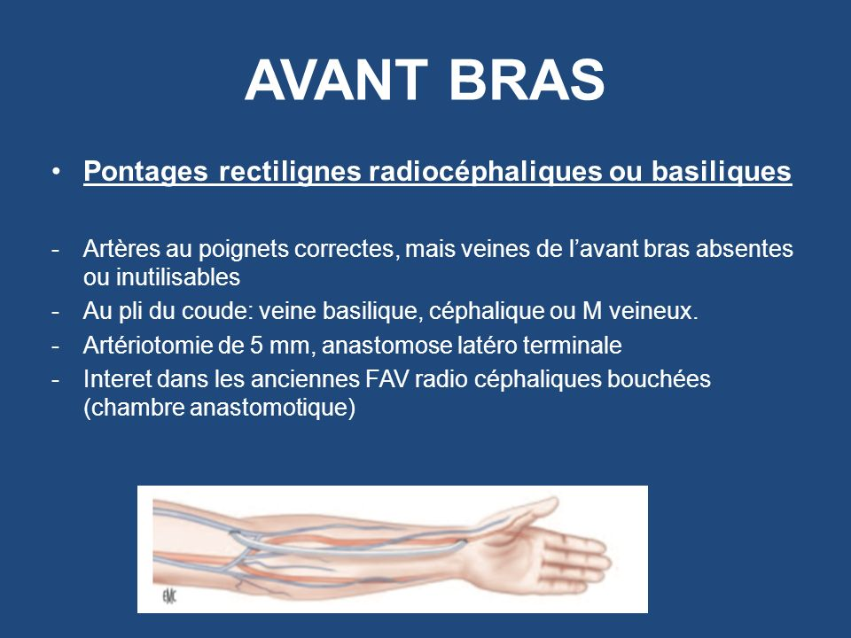 AVANT BRAS Pontages rectilignes radiocéphaliques ou basiliques