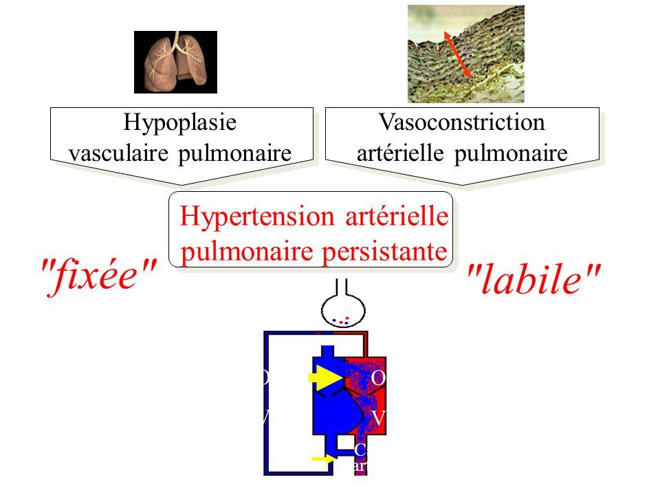fixée labile Hypertension artérielle pulmonaire persistante