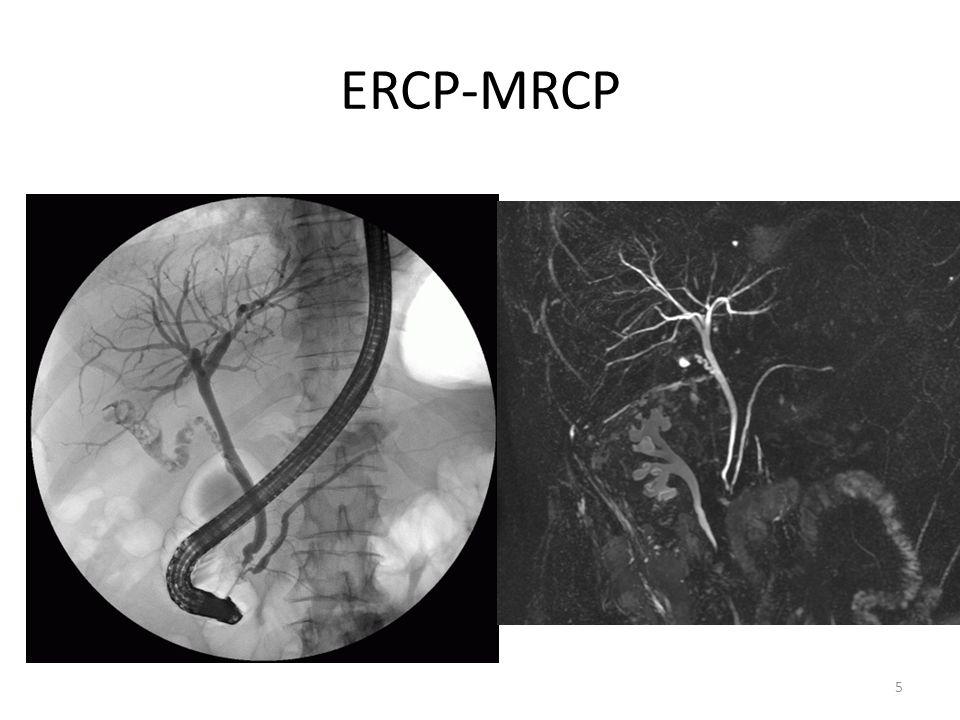 ERCP-MRCP