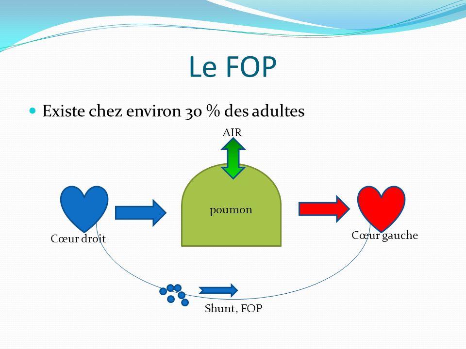 Le FOP Existe chez environ 30 % des adultes