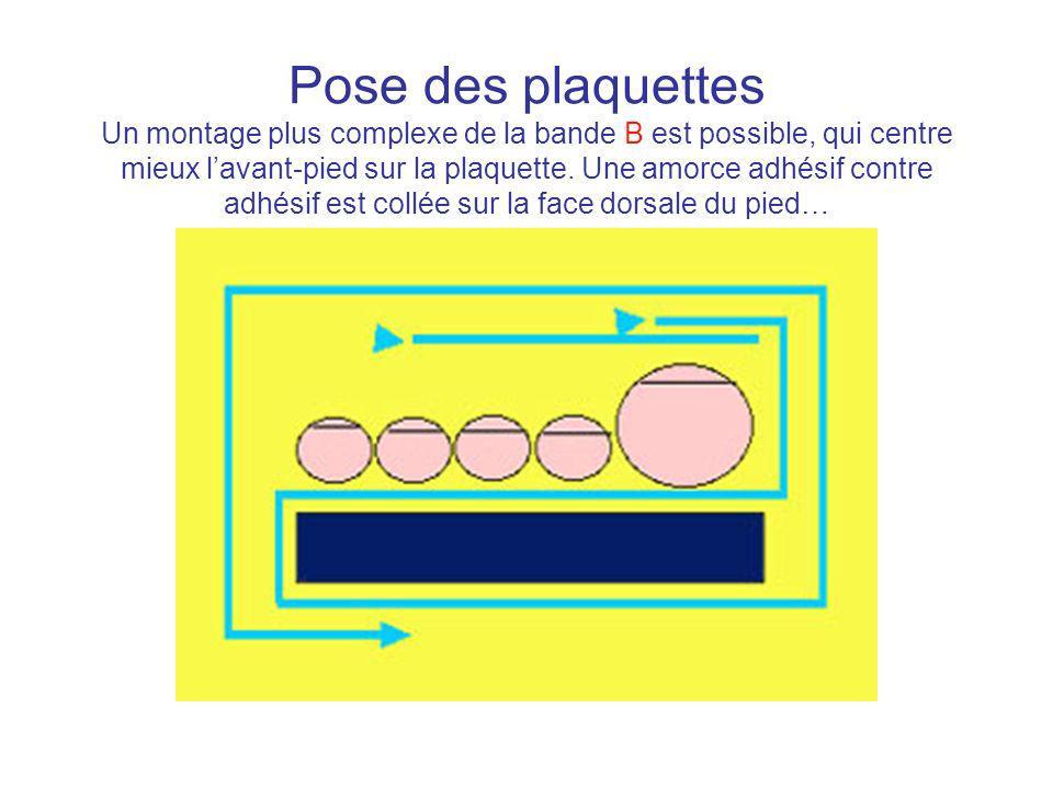 Pose des plaquettes Un montage plus complexe de la bande B est possible, qui centre mieux l'avant-pied sur la plaquette.