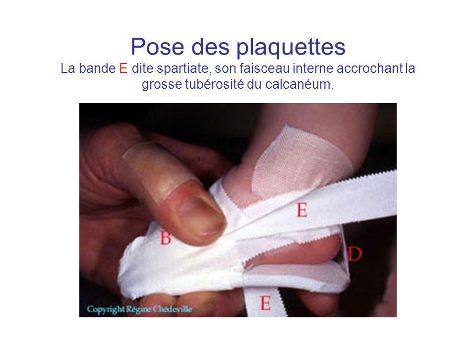 Pose des plaquettes La bande E dite spartiate, son faisceau interne accrochant la grosse tubérosité du calcanéum.